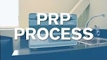 What does the prp process look like?