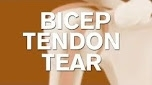 What does a bicep tendon tear look like?