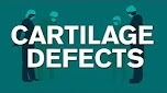 Surgery For Cartilage Defects