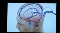 Dr. Patsalides: Clinical Trial for Pseudotumor Cerebri
