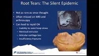 What is a Meniscus Root Tear? | Why Repair a Meniscus Root Tear? | Robert LaPrade, MD, PhD