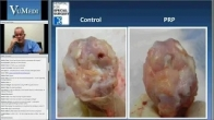 Biological Enhancement in the Treatment of Osteochondral Lesions of the Talus