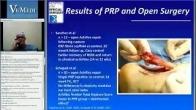 PRP for Achilles Injuries VuMedi