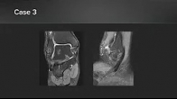 NanoScope Operative Arthroscopy System Cases
