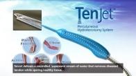TenJet Patient Animation