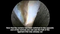Endoscopic carpal tunnel surgery - Bruce Leslie, MD