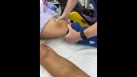 Healthy ACL Exam Under Anesthesia