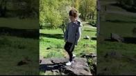 Congenital Femoral Deficiency - Testimonial
