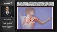 Arthroscope-Assisted Lower Trapezius Transfer for Massive Irreparable Rotator Cuff Tears