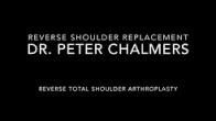 Reverse Shoulder Replacement - Patient Version