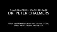 Quadrilateral Space Release - Patient Version