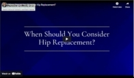 When Should You Consider Hip Replacement?