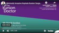 Minimally Invasive Keyhole Bunion Surgery - The Bunion Doctor - UK's Leading Keyhole Bunion Expert