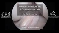ACL Reconstruction with Quadriceps Tendon Autograft